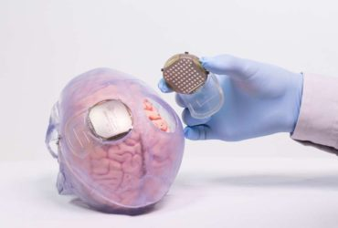 Des électrodes placés dans une neuroprothèse